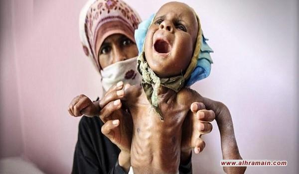 عن مجاعة أطفال اليمن والضمير العربي النائم!