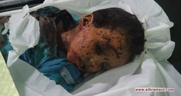 صعدة: استشهاد طفل وإصابة شقيقه بانفجار قنبلة عنقودية سعودية