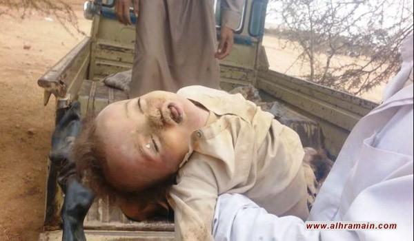 """""""هفنغتون بوست"""": على واشنطن إنهاء المساعدة اللوجستية للسعودية في اليمن"""